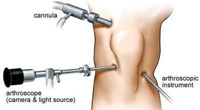 آرتروسکوپی در آسیب ها